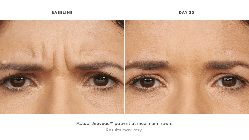 Before and after Jeuveau® results