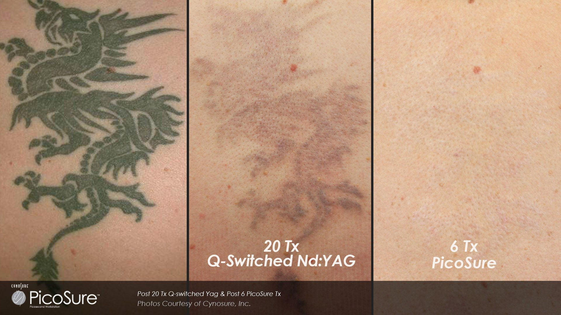 Before and after laser tattoo removal results