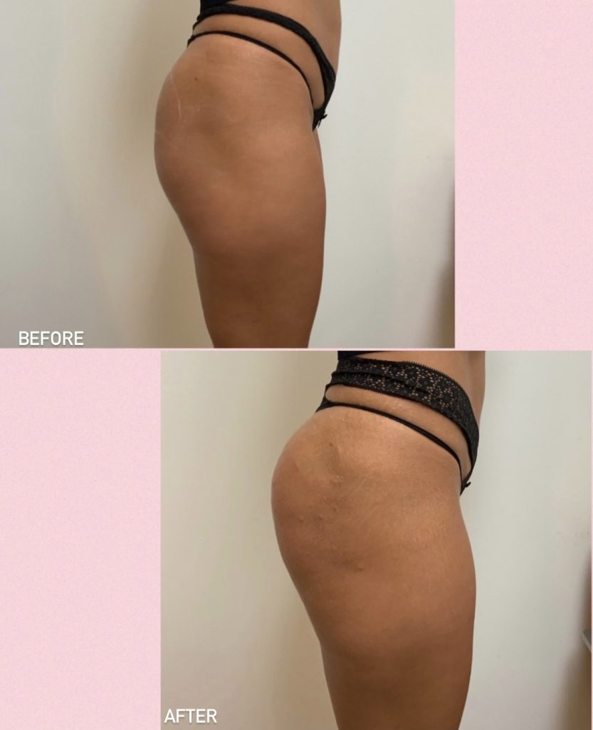 Before and after Sculptra® buttock lift results