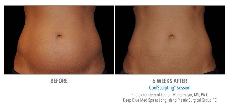 Before and after CoolSculpting® results