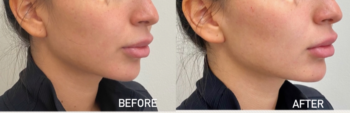 Patient results after chin and cheek filler