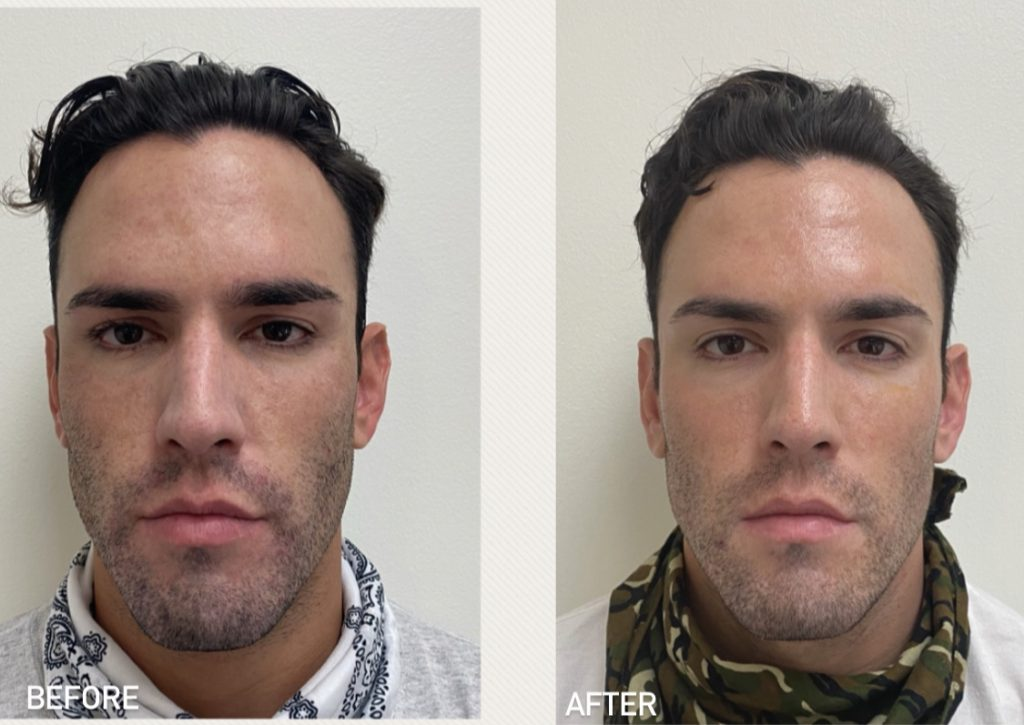 Before and after Clear + Brilliant® results for a male patient