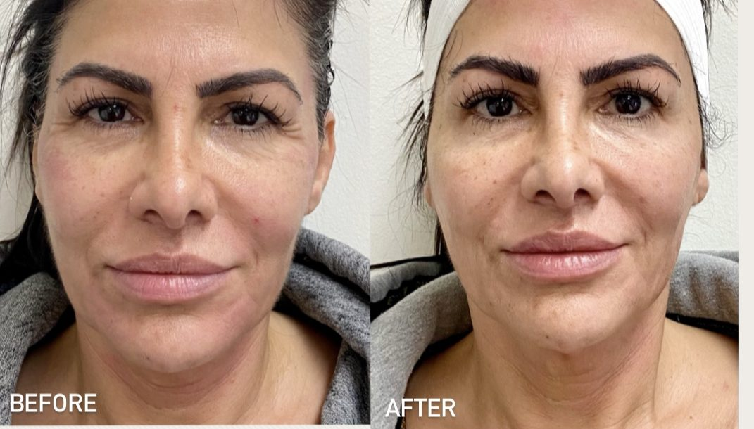 Before and after Botox and Forma results