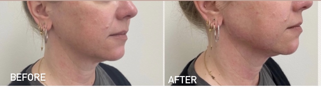 Before and after jawline filler results