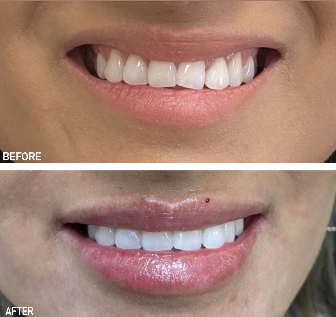 Before and after lip filler results