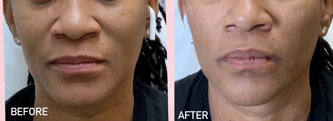 Patient results after filler for laugh lines