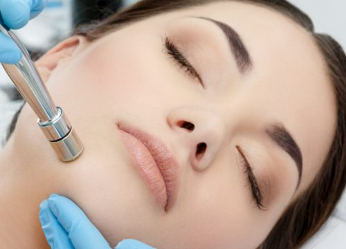 Woman receiving microdermabrasion treatments