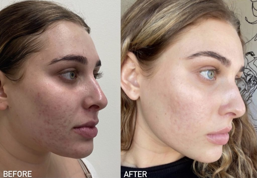Before and after microneedling results for a female patient