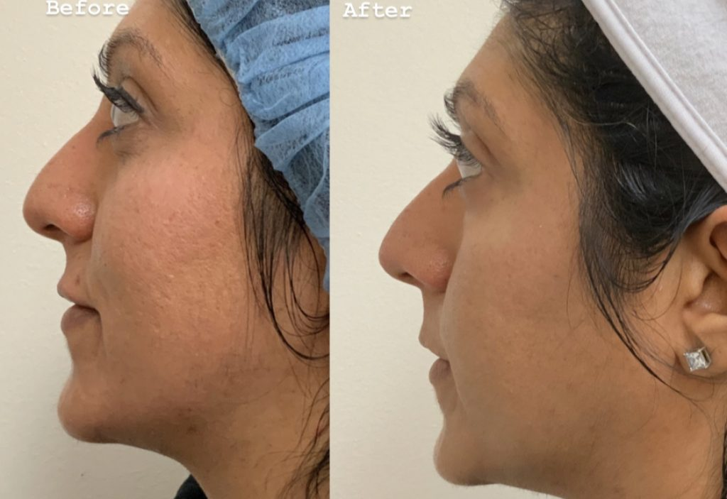 Before and after Microneedling + PRP results