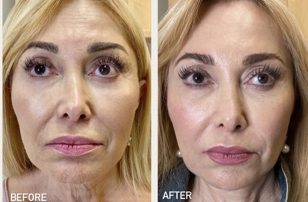 Before and after Morpheus8 & Botox treatments