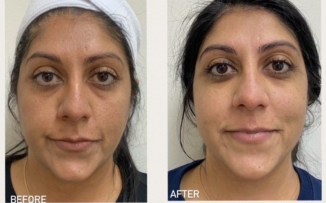Before and after Morpheus8 & PRP treatments