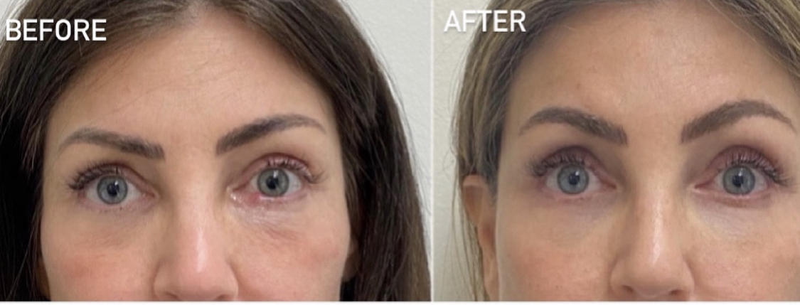 Before and after Morpheus8 & PRP under eye treatments