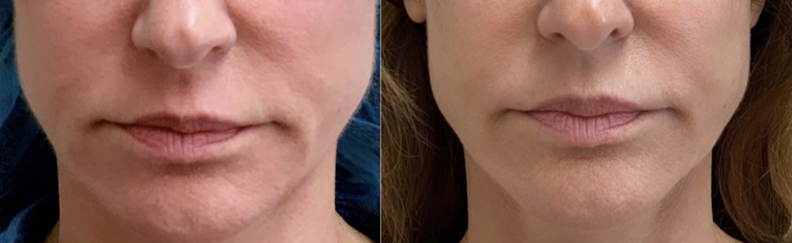 Before and after Morpheus8 results