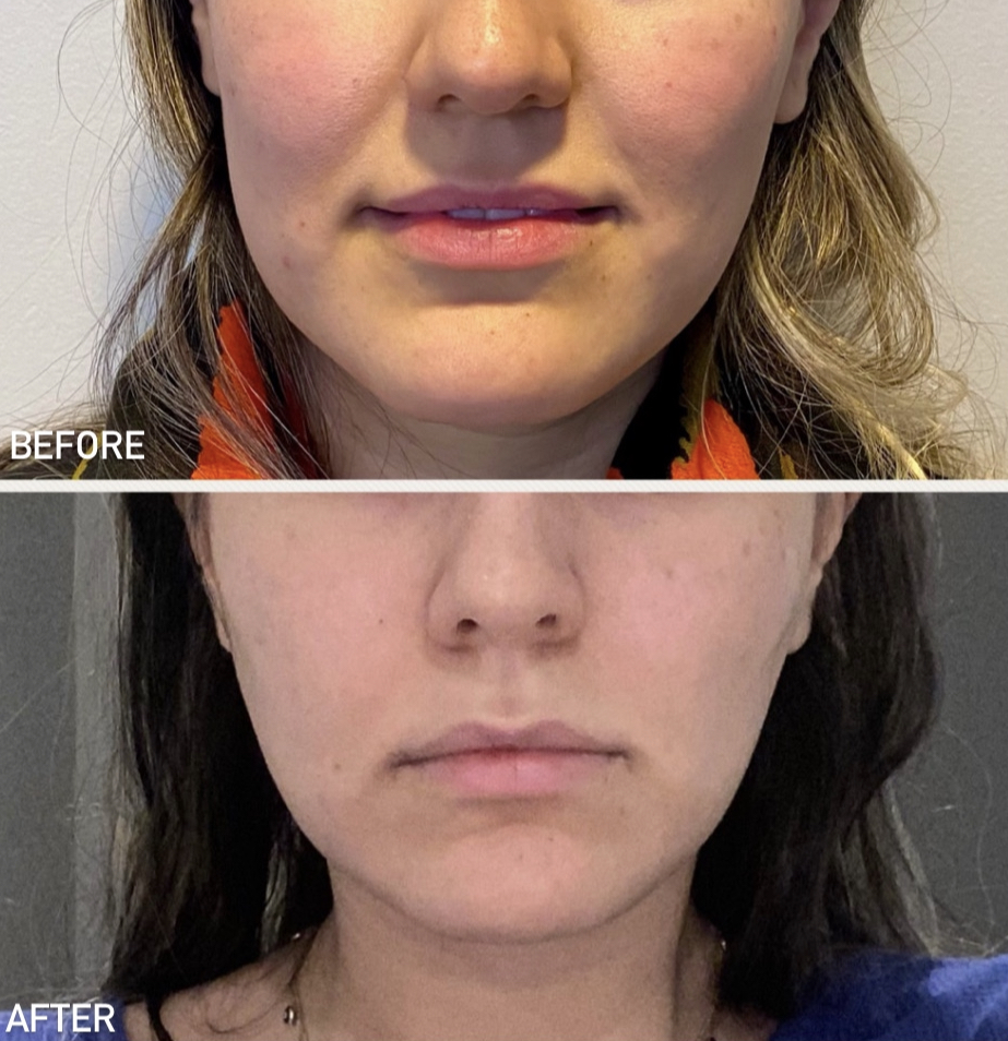 Before and after PDO Thread Lift Results
