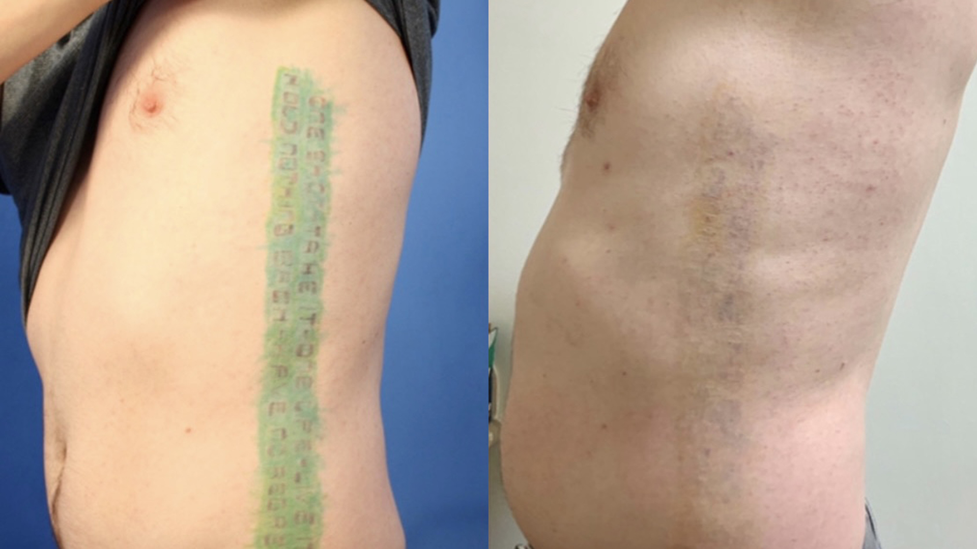 Before and after Picosure® laser tattoo removal results