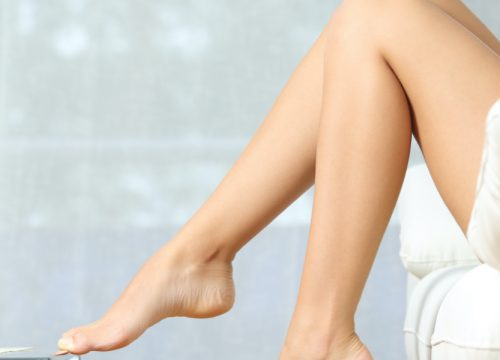 Woman's legs after Asclera® sclerotherapy treatments