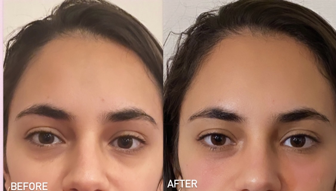 Before and after undereye filler results