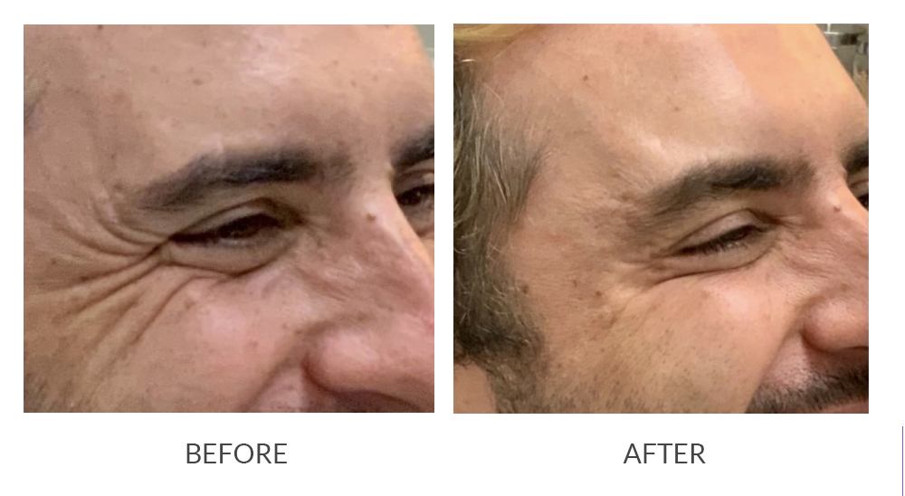 Before and after BOTOX® results