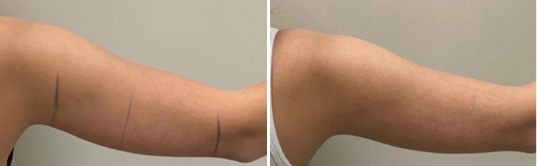 Before and after Coolsculpting arm results