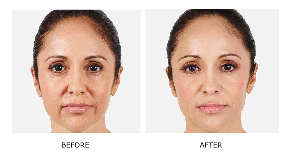 Before and after JUVÉDERM® results