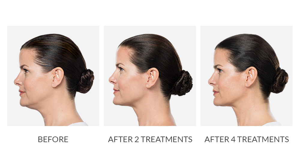Before and after KYBELLA® results