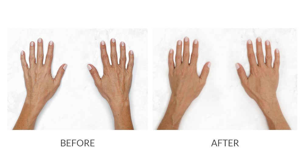 Before and after Restylane® hand results