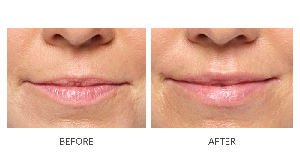 Before and after Restylane® results